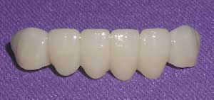 Porcelain Fixed Dental Bridges by Dr. David Richardson - Charleston South Carolina Dentist