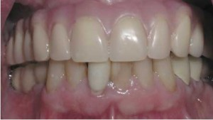 Dental Implant Supported Fixed Dentures by Dr. David Richardson - Charleston South Carolina Implant Dentist