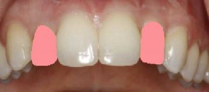 Before and After Photos of Porcelain Tooth Crowns: