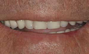 Dental Implant Retained Removable Dentures by Dr. David Richardson - Charleston South Carolina Implant Dentist