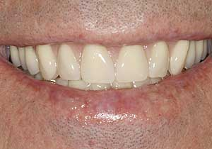 Dentures by Dr. David Richardson - Charleston South Carolina Implant Dentist